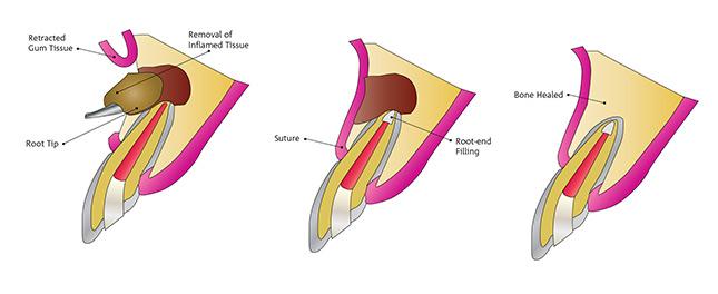 apicectomy